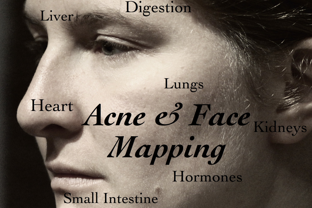 hormonal acne diagram 2003 mustang wiring face mapping what are your breakouts telling you bellatory understand where zones and they mean about internal health
