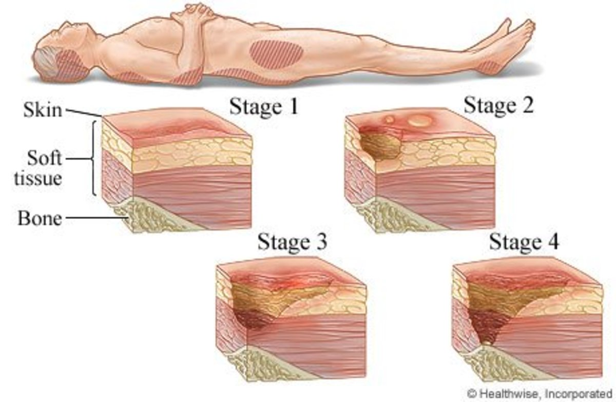 Pressure Ulcers: Cause | Owlcation
