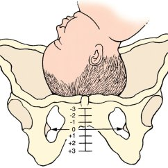 Diagram Of Baby Engaged In Pelvis Vauxhall Meriva B Wiring Stations During Labor Hubpages