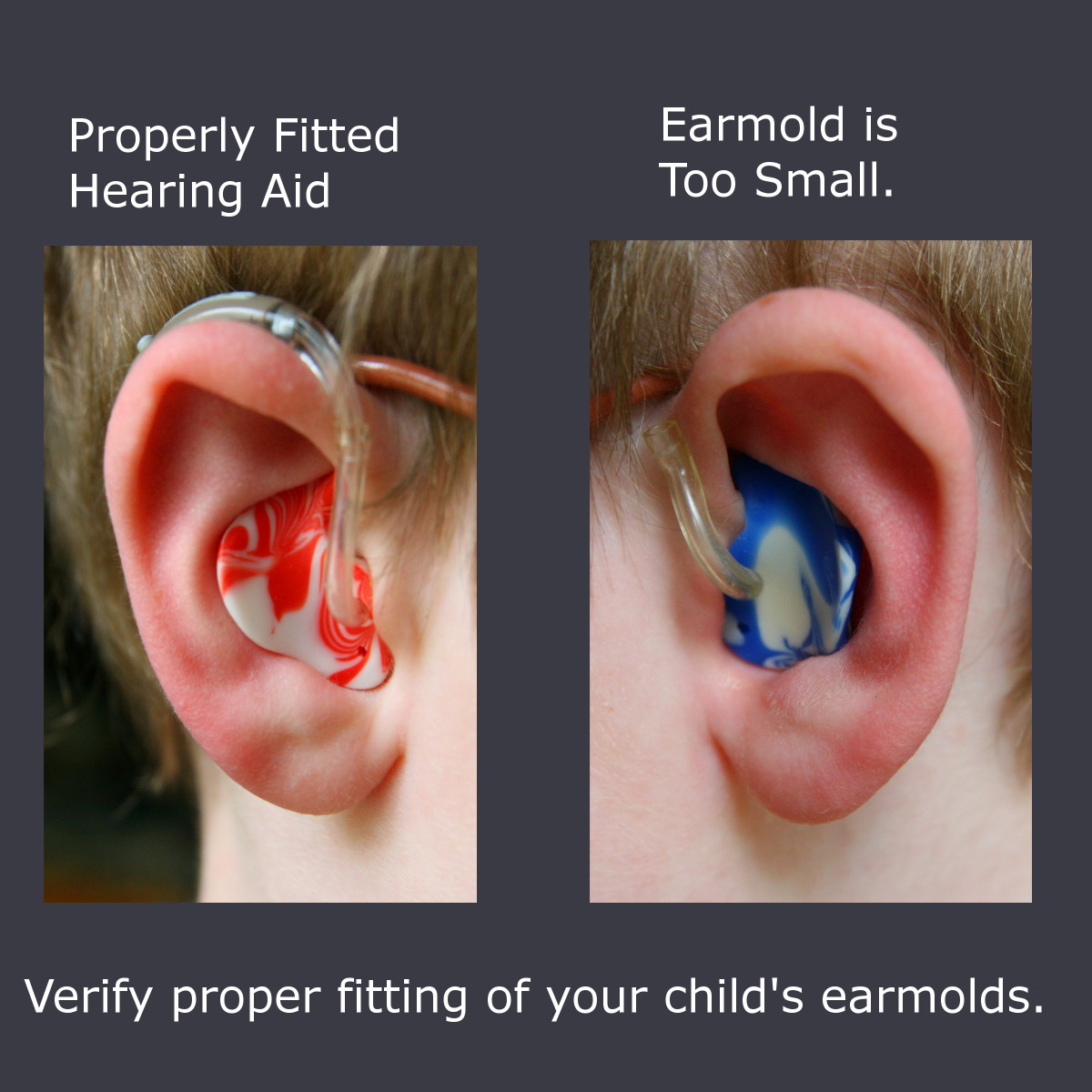 How To Put In A Child S Hearing Aid