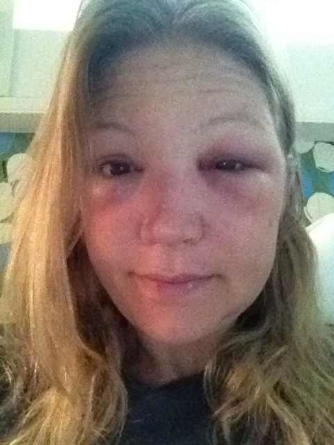 Forty Eight Hours After Bee Sting To The Eye Began Prescription Medication 12