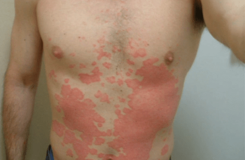 Psoriasis  Images Causes Symptoms Treatment  HubPages
