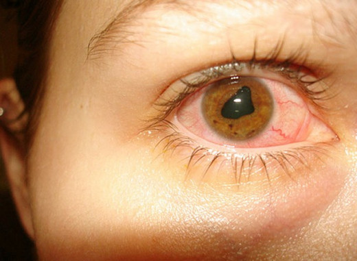 Iritis - Pictures Symptoms Causes Treatment | hubpages