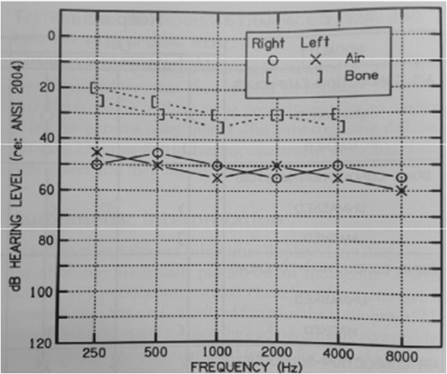 PTA臨床聽力學進階報告 on emaze