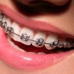 Common Actions That Weaken Your Teeth