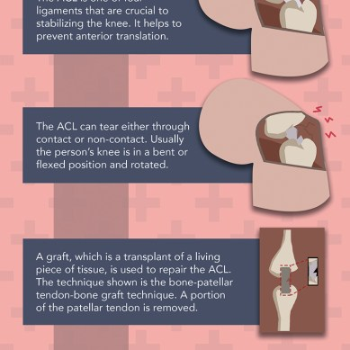ACL Graft Process