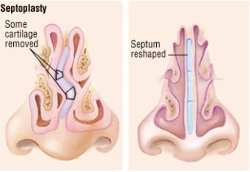 UTHSC ENT - Ask a Doctor - Deviated Septum - Septoplasty