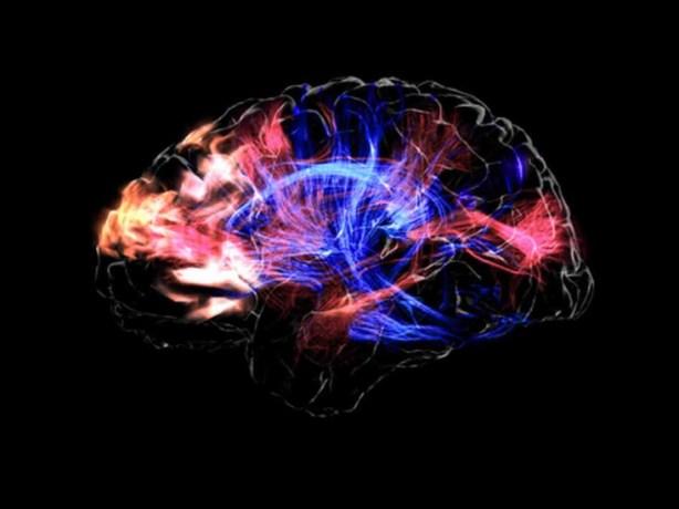 Your musical brain.jpg