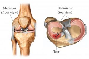 Meniscal Tear | UVA Health System