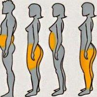 Santé: 6 types d'obésité et 6 solutions pour maigrir