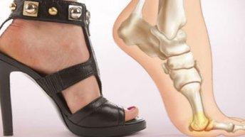 Santé: Les dangers des talons et comment ils affectent le corps