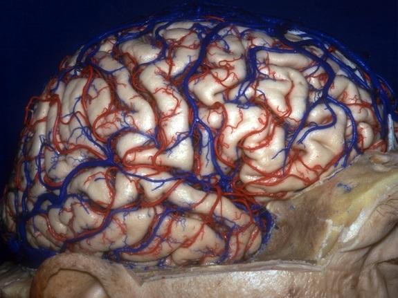 Otak kelihatan seperti