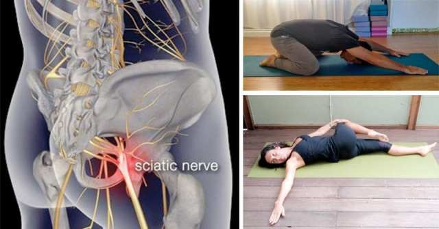 Image result for 11 Piriformis Stretches to Get Rid of Sciatica, Hip and Lower Back Pain Sciatica
