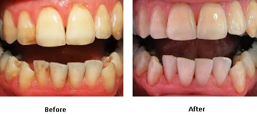 Valley Dentalcare | Stain Removal (AirFlow)