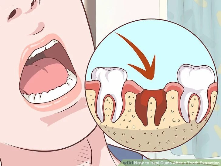 Healing Process Of Tooth Extraction Pictures