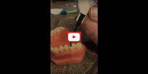 Learn how sealants are applied on your teeth!