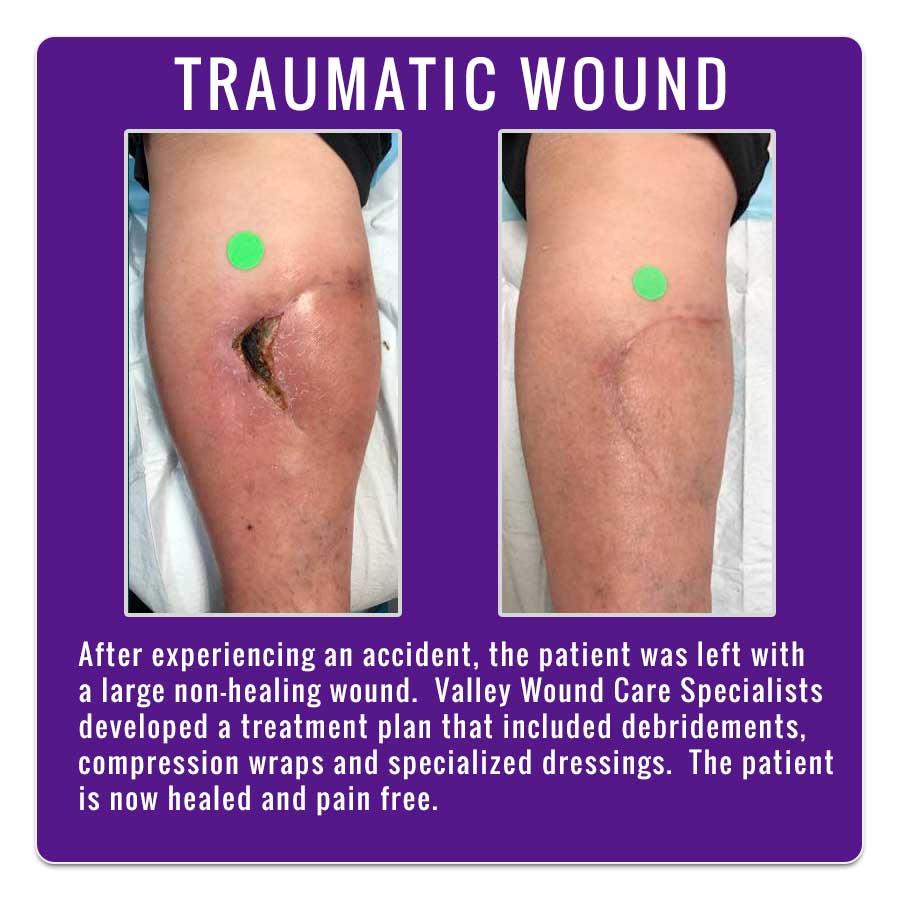 Traumatic Wound