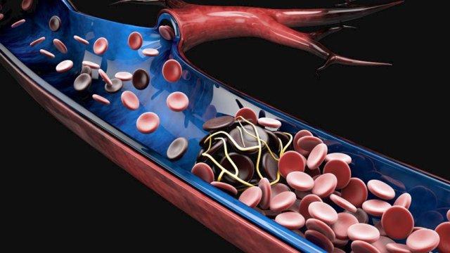 La trombosis venosa profunda puede ser muy grave porque los coágulos sanguíneos que se producen en las venas pueden soltarse y desplazarse a través del torrente sanguíneo y atascarse en los pulmones y bloquear el flujo de sangre.