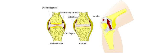 previnir e tratar artrose