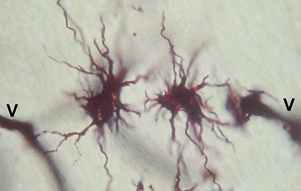 Neuroglia  Image 2