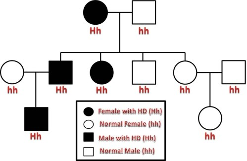 small resolution of in this example pedigree the first generation resulted in a cross between a woman with huntington s disease and an unaffected male