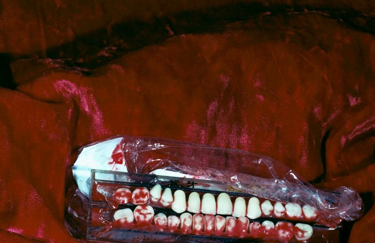 Bloodied teeth, tape, and either plastic or glass rest on satin red fabric. The flash from a camera creates shimmers in the fabric and the front few teeth.