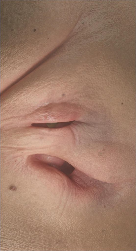 A fleshy, hyperrealistic folding of skin, pore, freckle, wrinkle—this image evokes both movement and closeness, intimacy, invasion.