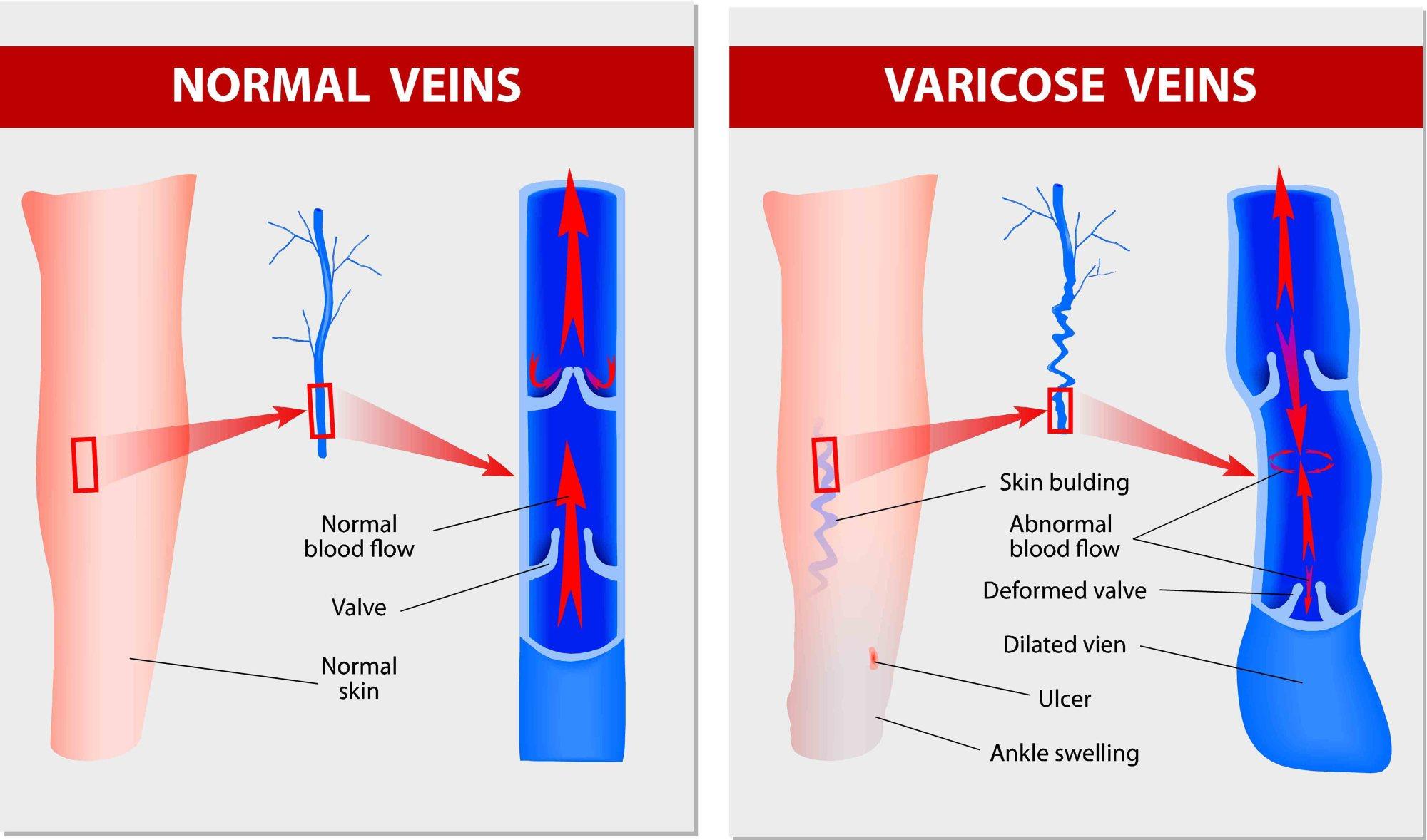 hight resolution of varicose ulcer diagram