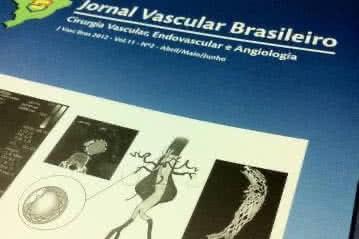 Aneurisma tratado endovascular