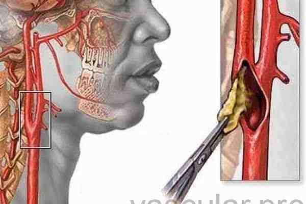 Cirurgia de carótida