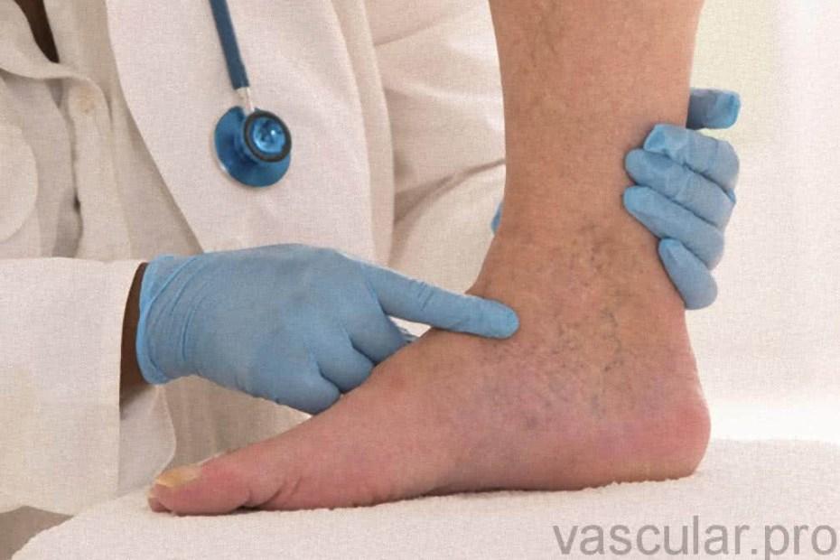 Tratamento Corretivo Da Doença Venosa