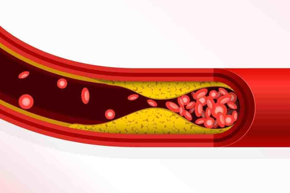 Trombose e entupimento vascular