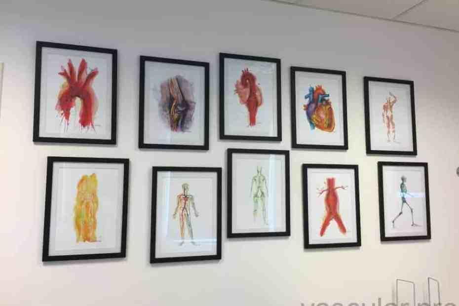 Arte vascular