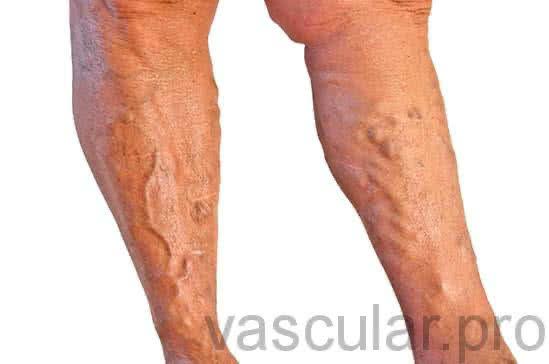 Dor na perna direita renal insuficiência