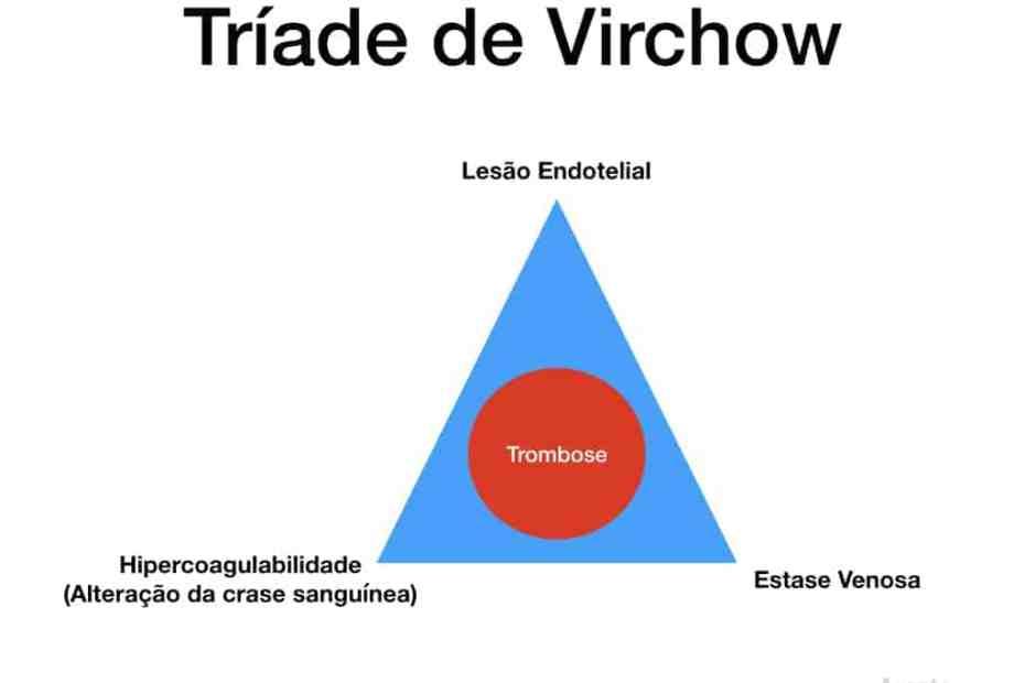 Tríade de Virchow