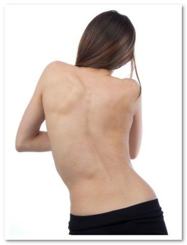 Искривление спины: не терпим, а идем к доктору!