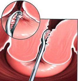 Что такое кюретаж в гинекологии. Что такое чистка матки. От чего появляется боль после выскабливания