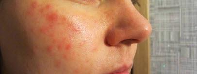 Шелушится кожа на подбородке: причины, народные и медикаментозные методы лечения