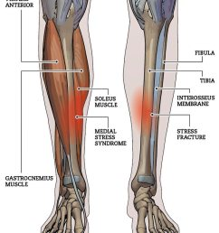 shin splints is a commonly used term for tibial stress syndrome tss tss is an overuse or repetitive stress injury that most commonly affects the inside  [ 807 x 1009 Pixel ]