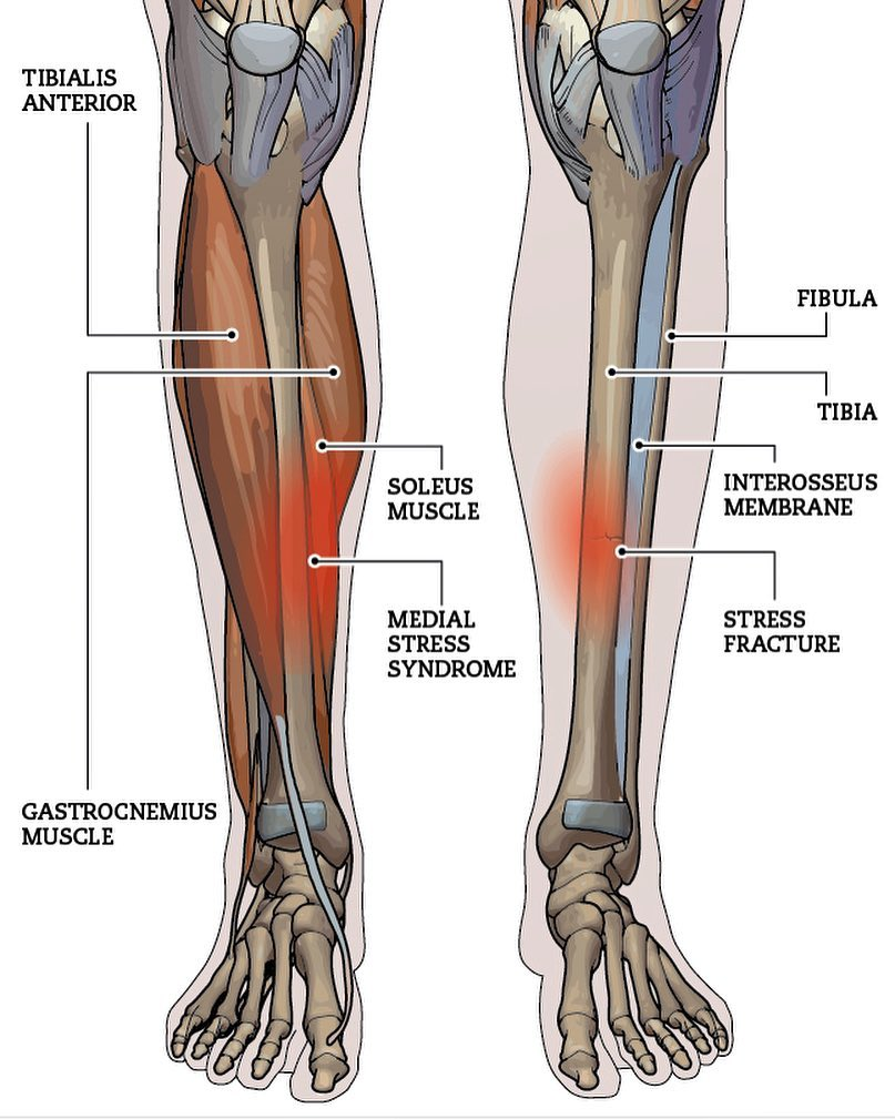 medium resolution of  shin splints is a commonly used term for tibial stress syndrome tss tss is an overuse or repetitive stress injury that most commonly affects the inside