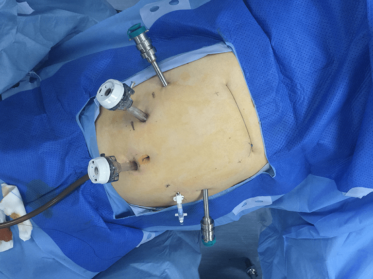 Videoassisted thoracic surgery for esophagectomy evolution and prosperity  Guo  Video