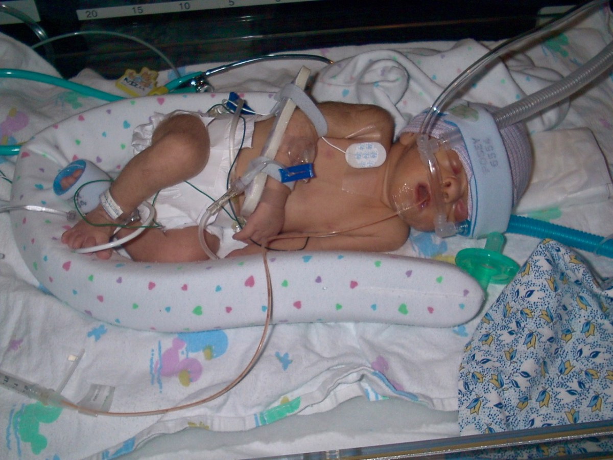 Premature babies can usually get all vaccines on schedule - at their chronological age, not an adjusted age based on being a preemie.