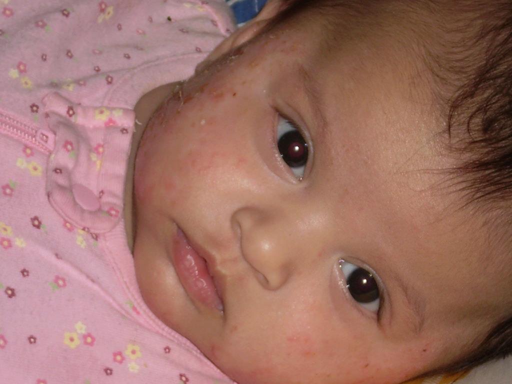 Can Vaccines Cause Eczema? - VAXOPEDIA