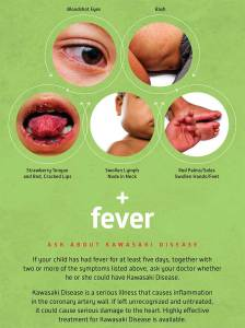 Ask about Kawasaki disease if your child has a fever for five days and other symptoms of Kawasaki disease.