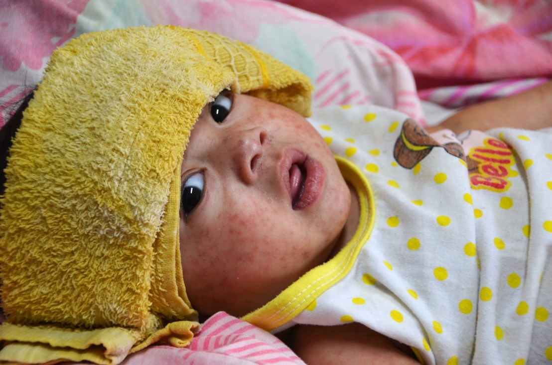 An infant with measles during the 2014 outbreaks in the Philippines.