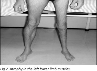In addition to respiratory problems (think iron lungs), polio causes muscle atrophy.