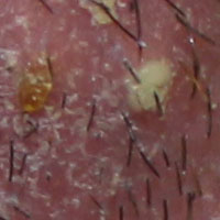 Image result for Scalp infection