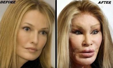 Jocelyn trước (trái) và sau khi phẫu thuật. Ảnh: infoupdate.