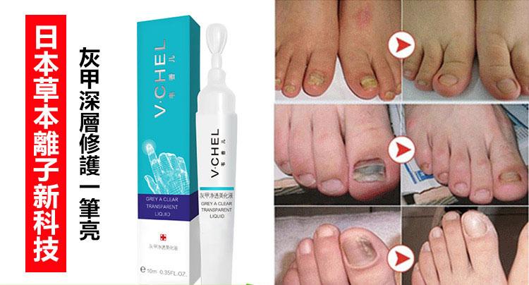 灰指甲看哪一科門診,正確的灰指甲治療方法 – 日本V.CHEL灰甲液