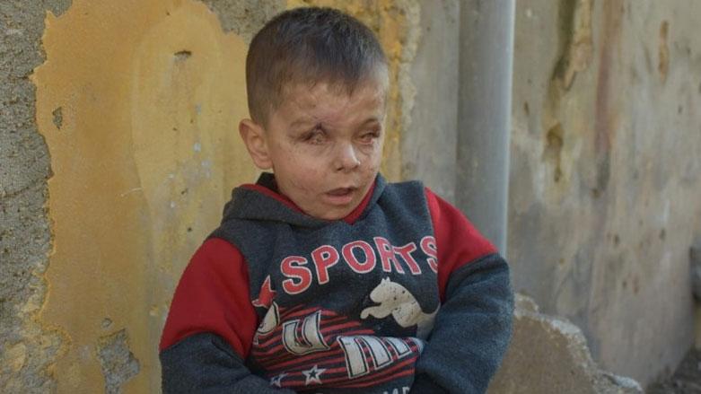 Zarokekî Efrînî bang li rêxistinên mirovî û NY dike
